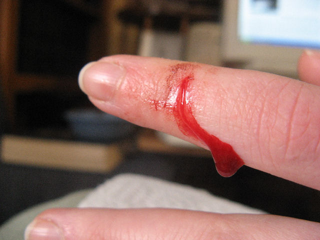 bleeding!